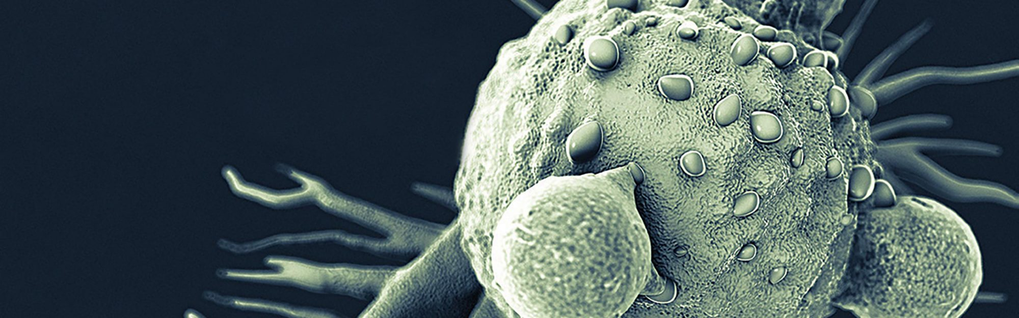 Image of Car-T cancer cell